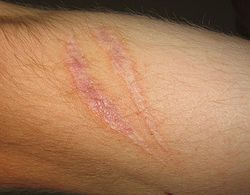 acne-littekens