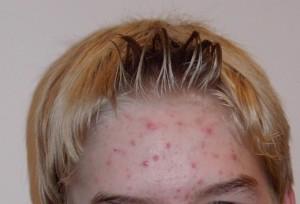 wat-is-acne